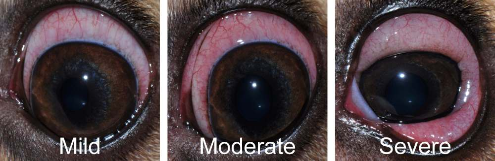 Mild - Moderate - Severe conjunctivitis