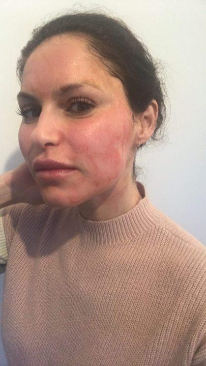 vampire facial prp skinne klinik