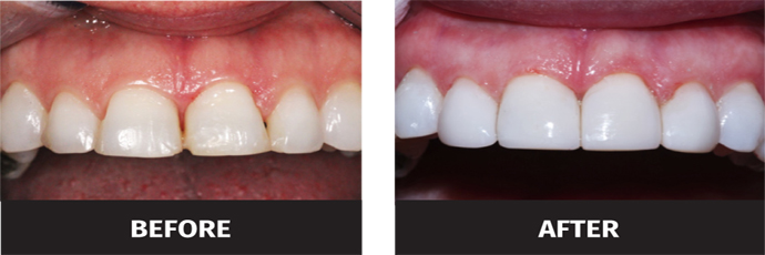 image of black triangle teeth before and after