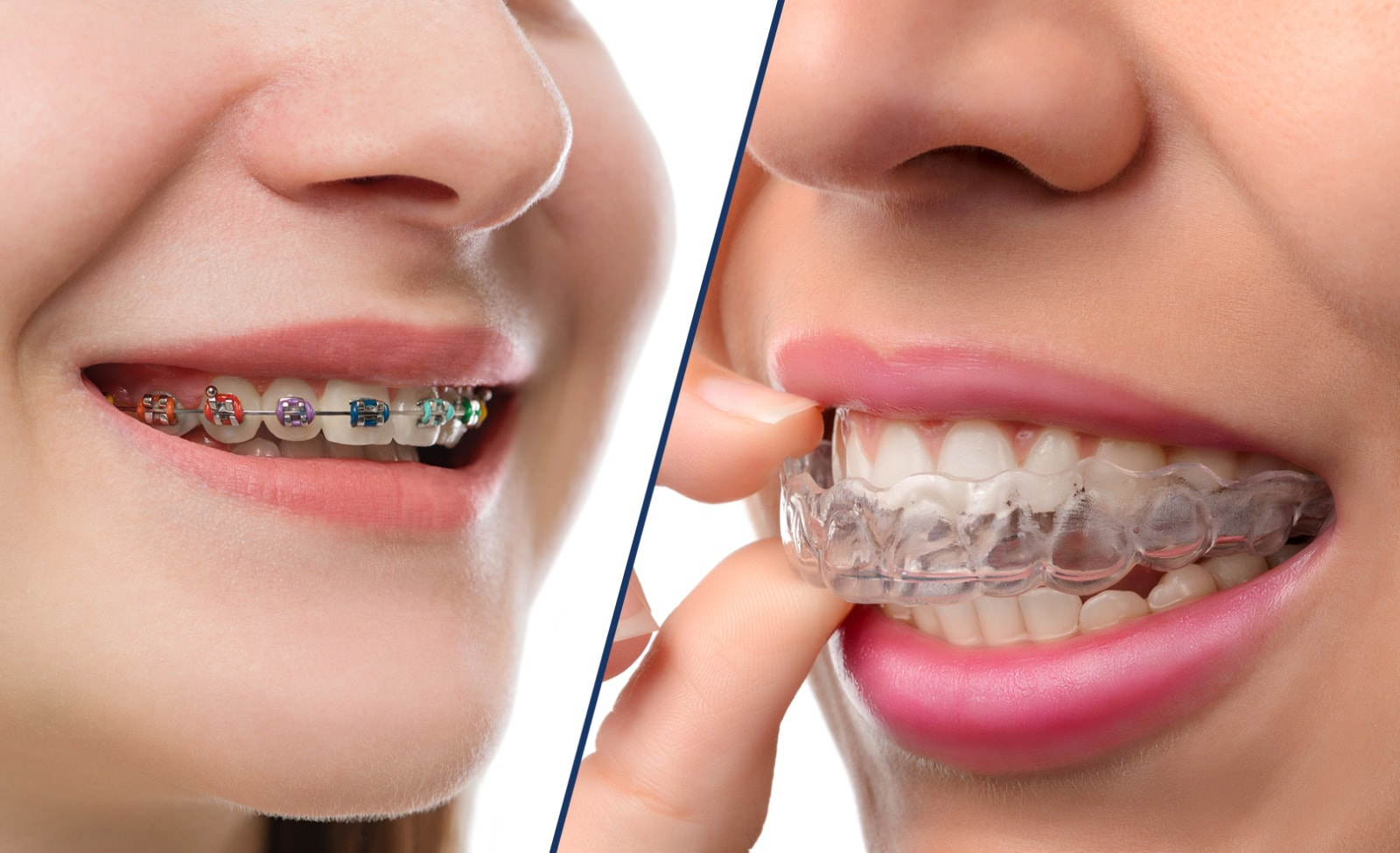 Metal-braces-vs-invisalign