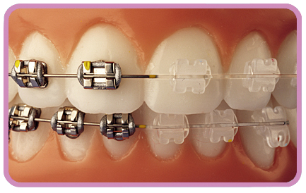 Metal Braces vs Ceramic Braces