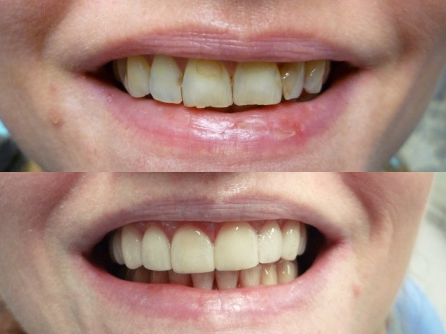 After placement of veneers