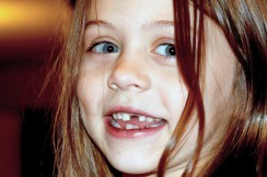 single tooth missing