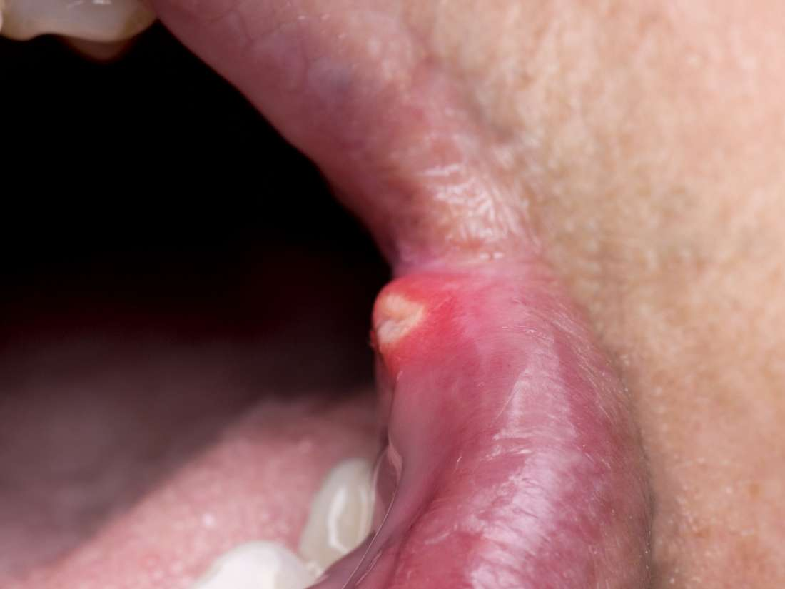 Mouth sores from chemo: Cause, symptoms, and remedies