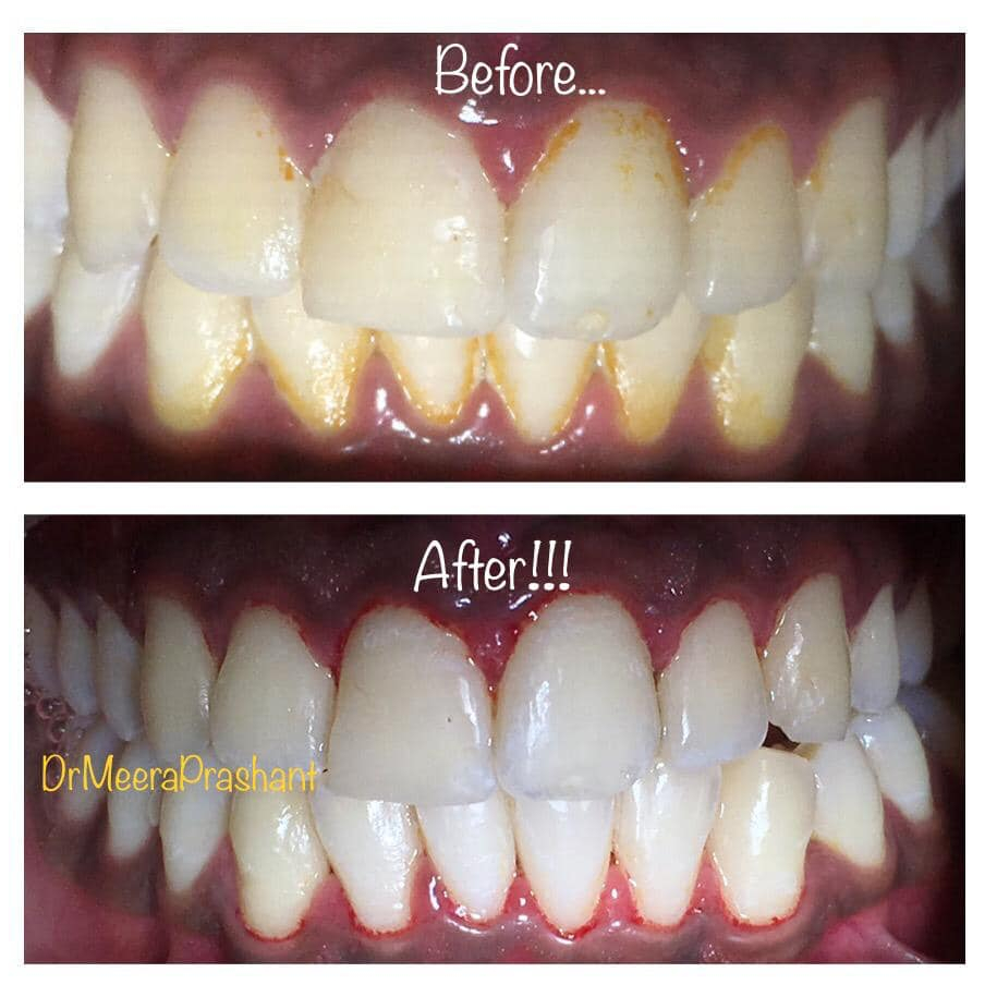 Before-After Treatment