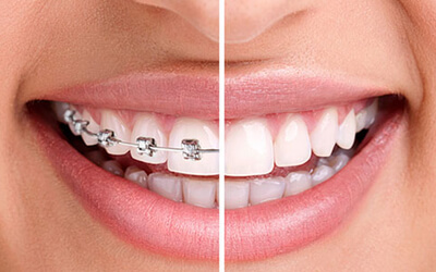 The braces boost!