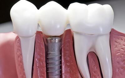 Dental Implants for me?