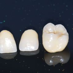 ästhetische Digitale Zahnmedizin