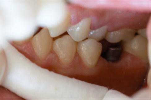 Εμφυτευματα δοντιων