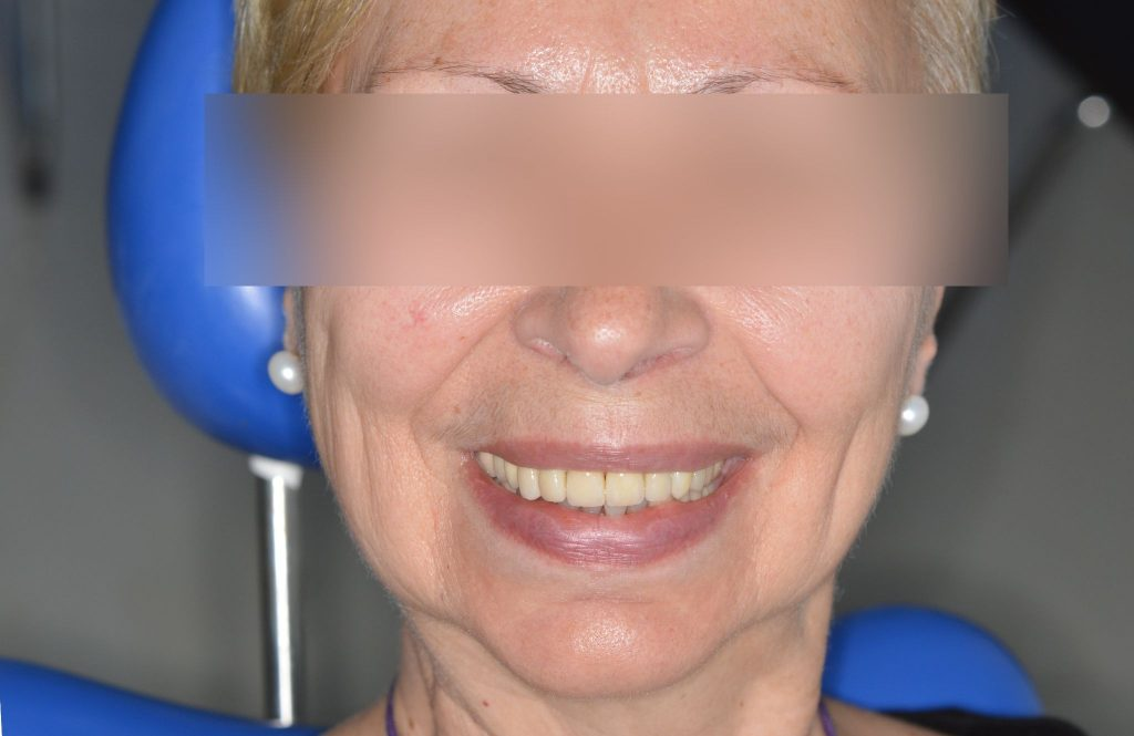 Το Οδοντιατρείο βρίσκεται στο κεντρο του Πειραιά και χαριζει ομορφα χαμογελα με εμφυτεύματα δοντιών,όψεις πορσελάνης,ρητίνης,λεύκανση,dental bonding,Veneers