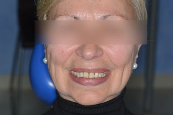 Το Οδοντιατρείο βρίσκεται στο κεντρο του Πειραιά και χαριζει ομορφα χαμογελα με εμφυτεύματα δοντιών,όψεις πορσελάνης,ρητίνης,λεύκανση,dental bonding,VeneersΠειραιας
