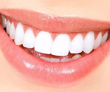 Το οδοντιατρείο μας στον Πειραιά προσφέρει λεύκανση δοντιών με laser, αισθητική ψηφιακή οδοντιατρική!