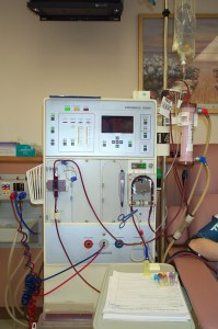 Dialysis Machine 1
