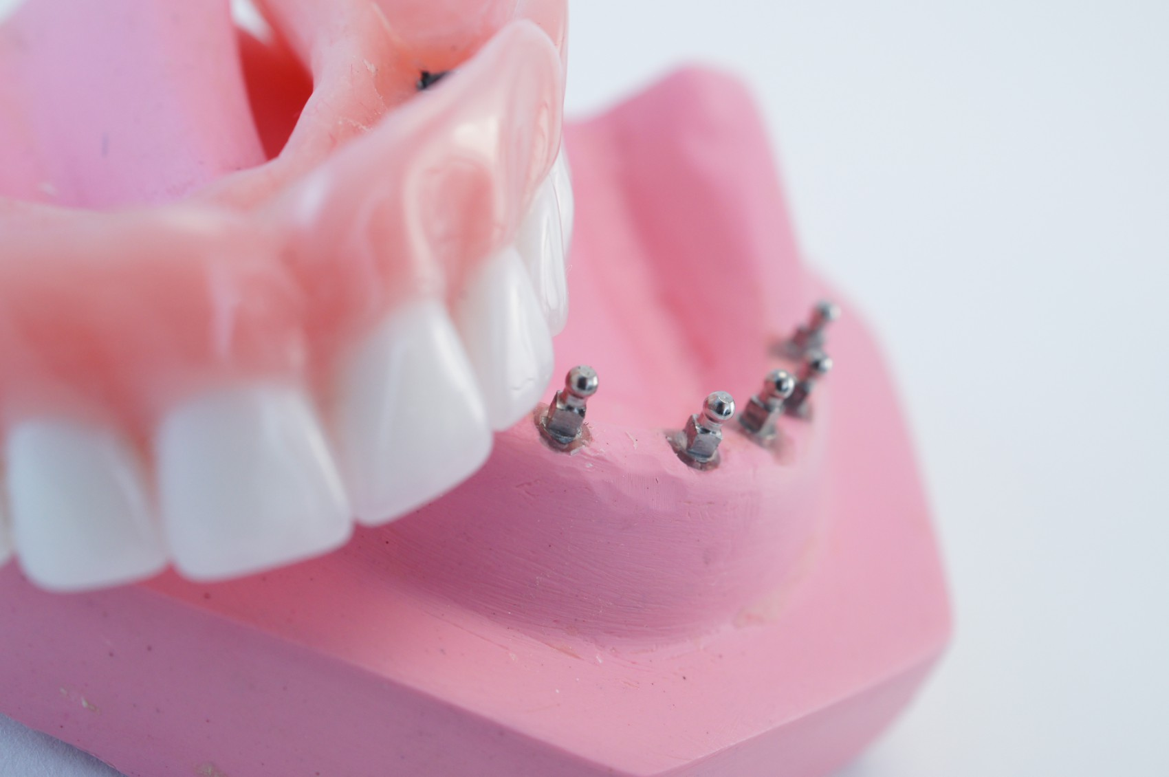 Cheap mini implants and Snap in Dentures