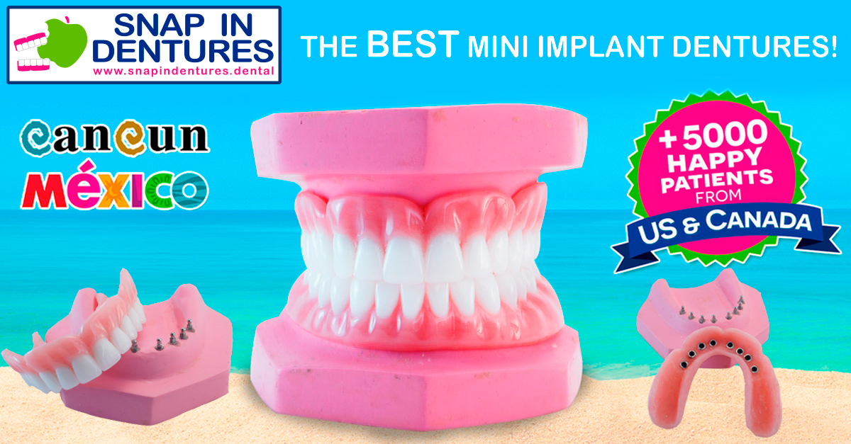 Snap in Dentures mini implant retained denture