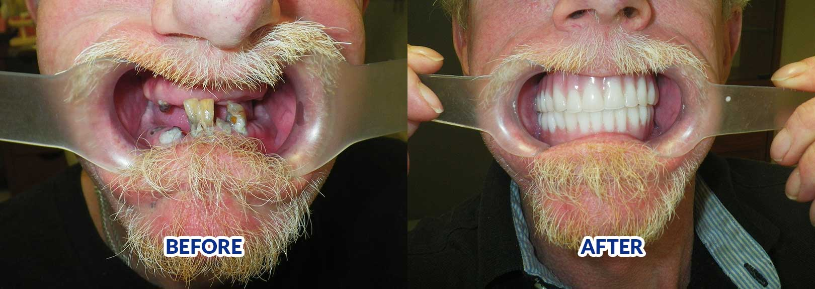 Snap In Dentures