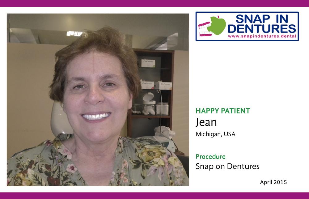 Snap in Dentures Happy patient Jane