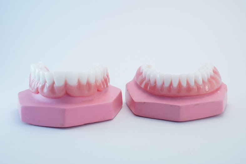 Snap in dentures and the change of your denture