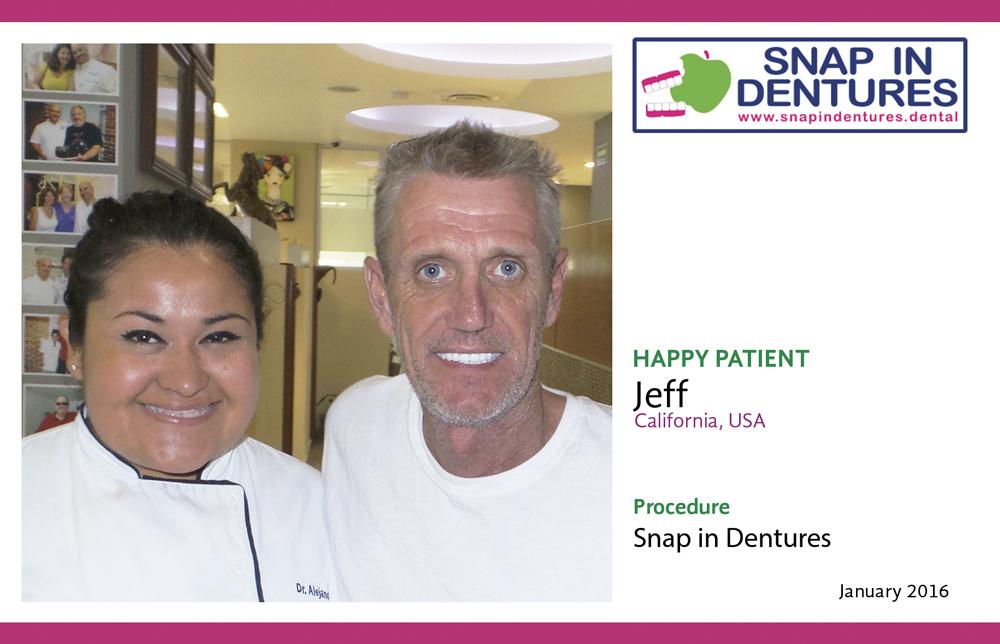 snap in dentures jeff