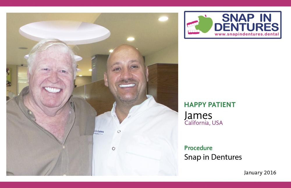 Snap on dentures James Happy patient