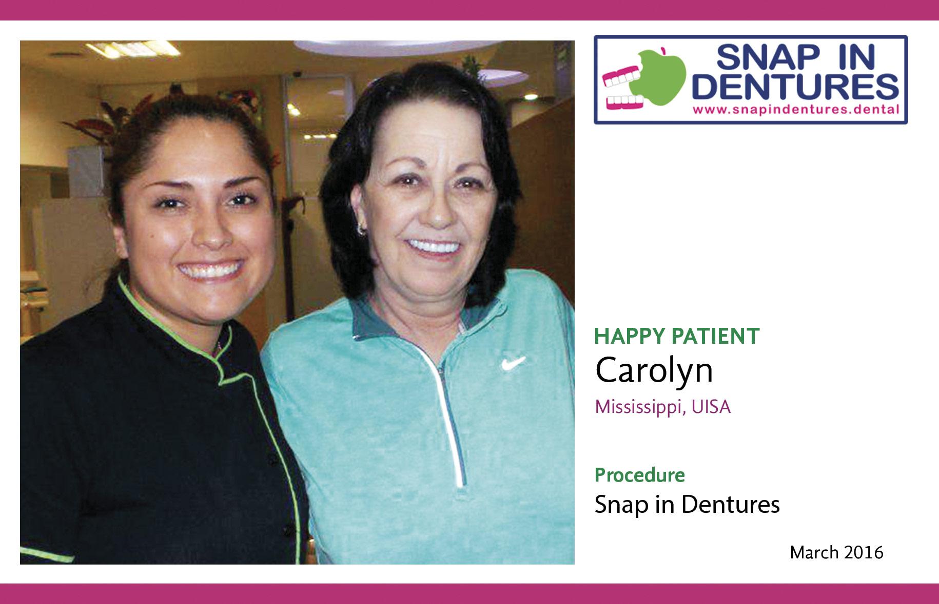 Snap in dentures: Happy Patient Carolyn!