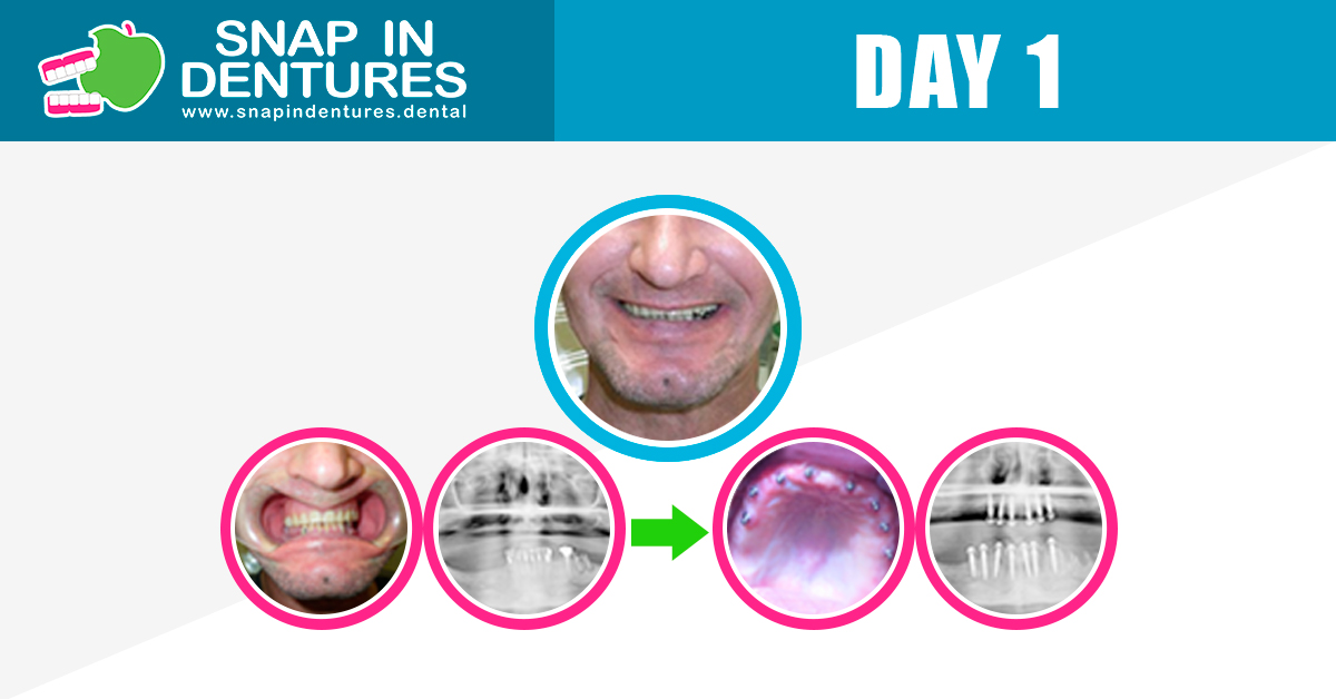 whats is the process of getting snap in dentures?
