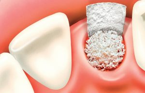 Can Snap in Dentures help me?