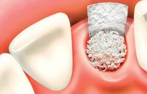 Bone Grafting for Mini Dental Implants