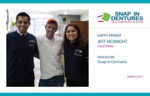 Snap in Dentures Happy Patient: Jeff