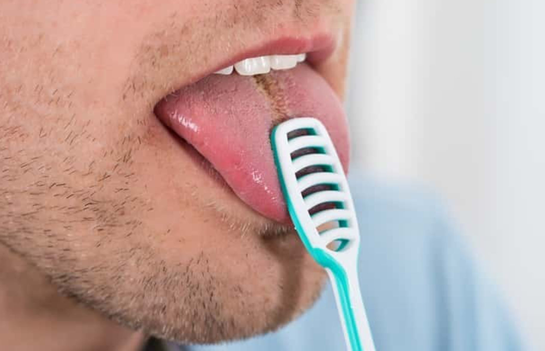 5 reasons you should scrape your tongue