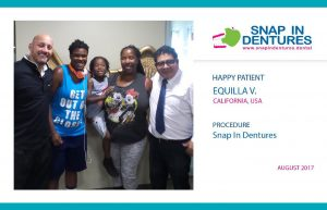 Snap in Dentures Happy Patient: Equilla
