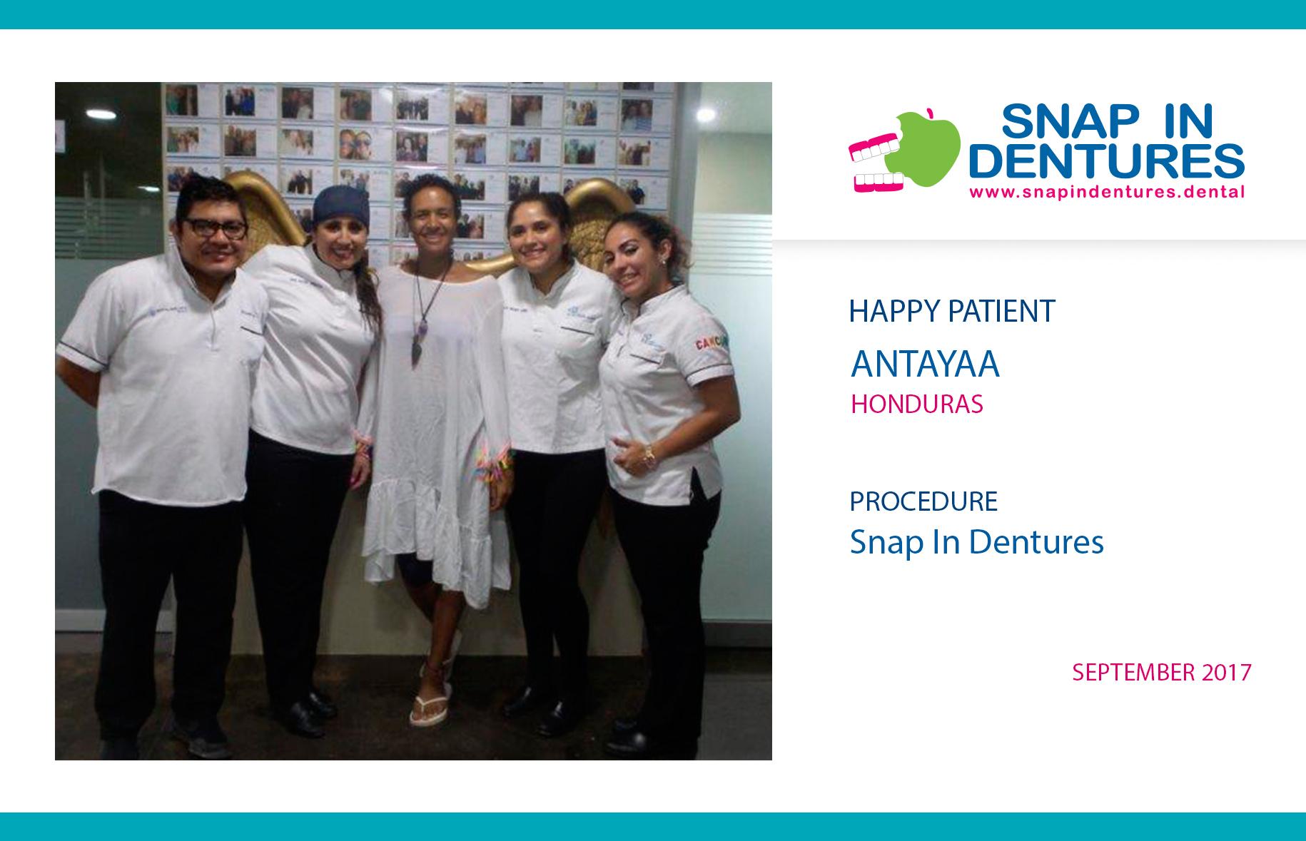 Snap in dentures reviews: Anataya smile again!