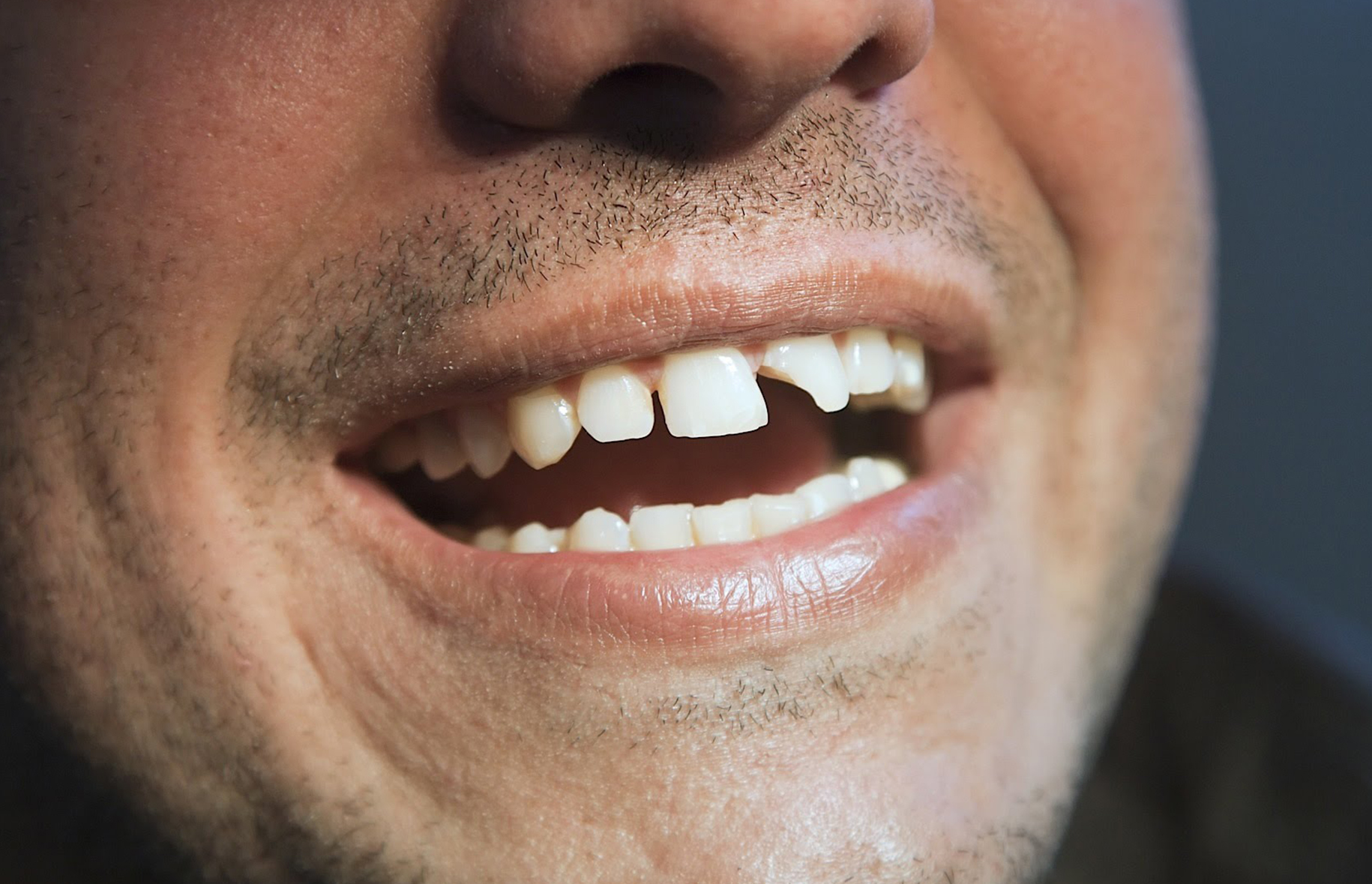 If I still have all my teeth, can I get mini implants?