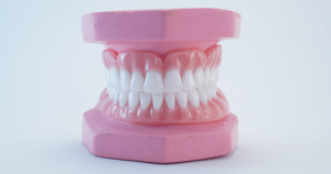 What's the difference between regular dentures and Snap in Dentures?