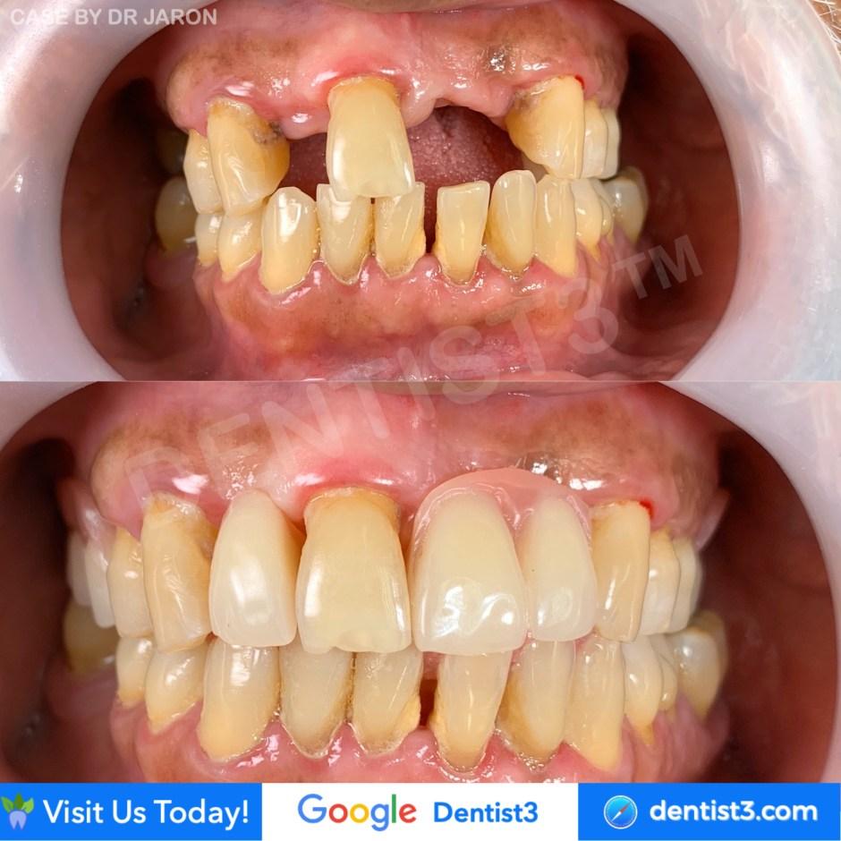 ngo-dental.jpg