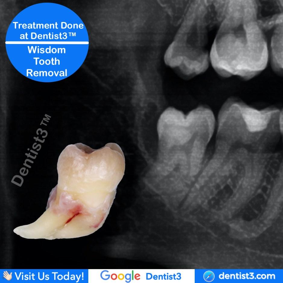 wisdom-tooth-removal_copy_5.jpg
