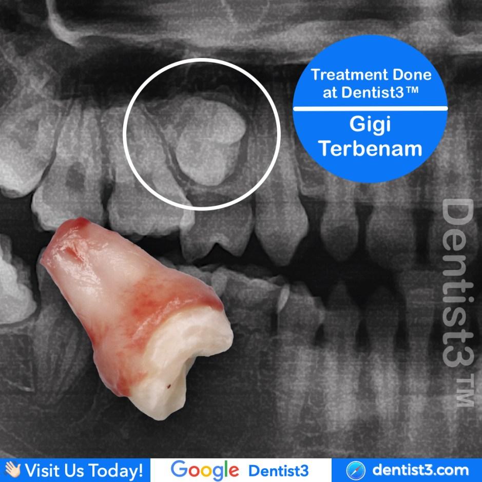 impacted-premolar.jpg