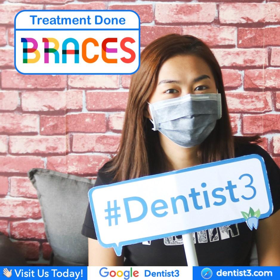braces-555.jpg