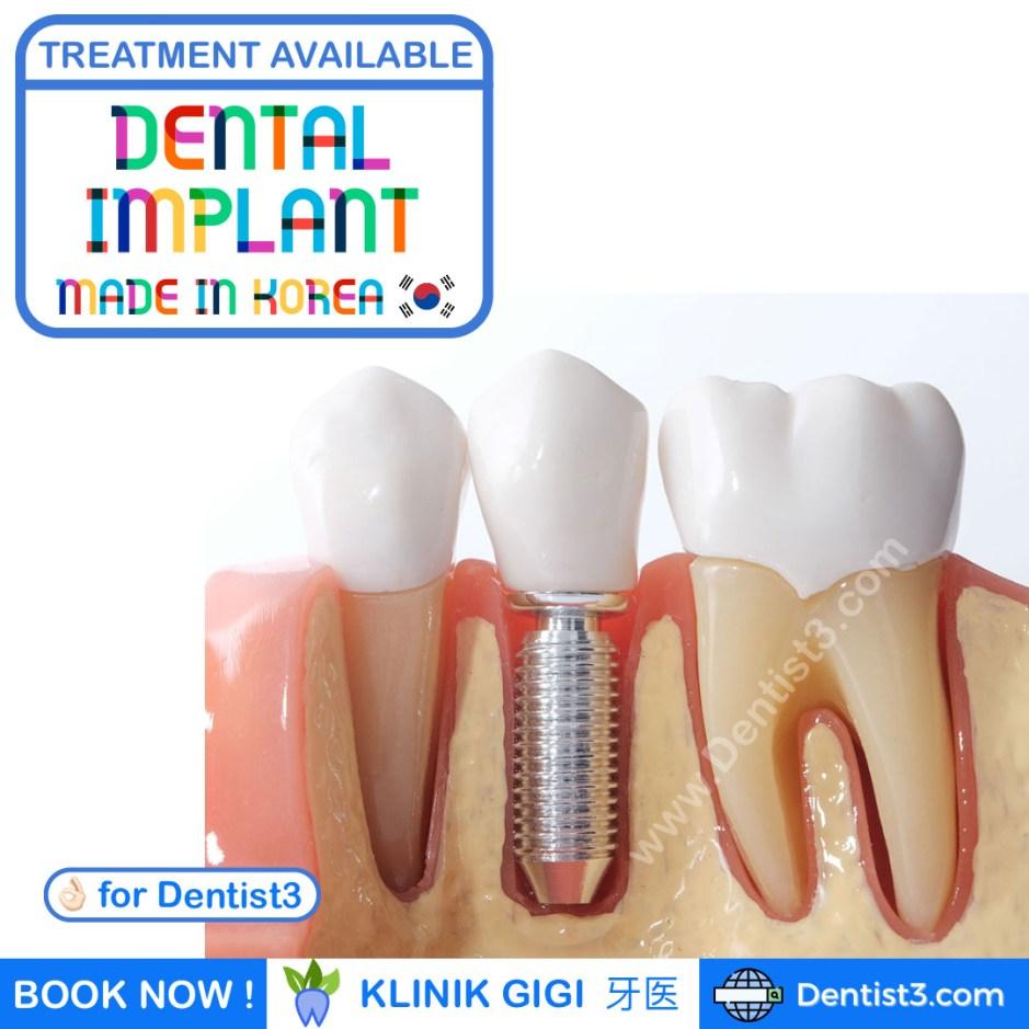 dental-implant-malaysia-3.jpg