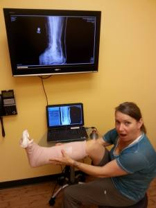 Real world example: Lynn of Tales from the Mutiny models her Alaska souvenir - a broken ankle! :-(