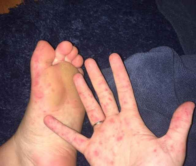 Hand Foot And Mouth Disease Breaks Out In First Year Dorms