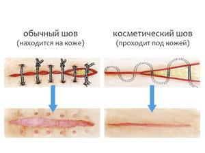 Как самому снять швы с раны. Как снять хирургические швы в домашних условиях