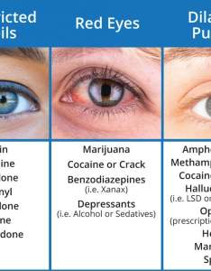 Pupil dilation drug chart also what drugs cause red eyes and dilated pupils sober college rh sobercollege