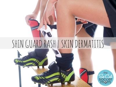 skin guard rash