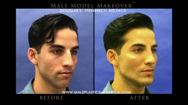 Millennial Men Are Falling In Love With The Male Model Makeover