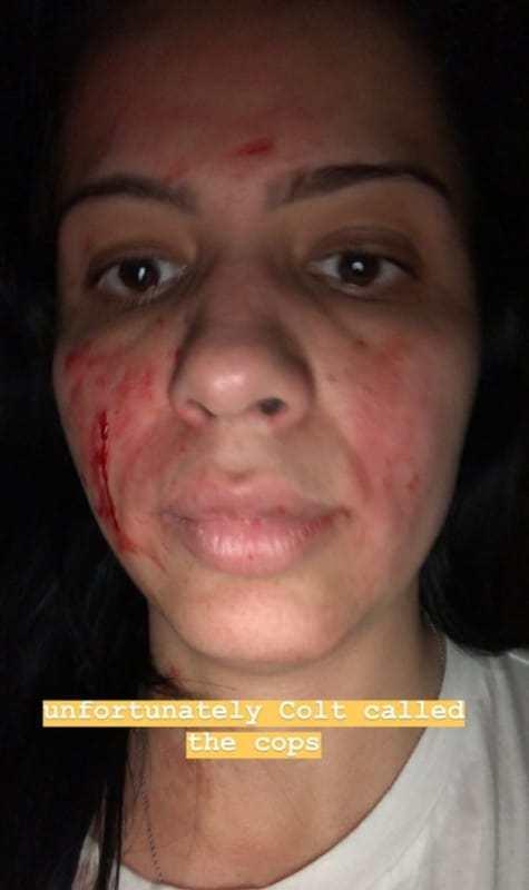 Larissa Dos Santos Lima injuries