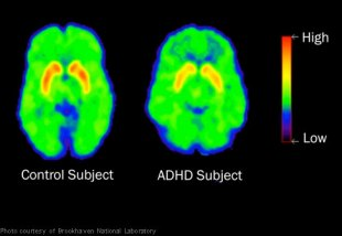 brain scan adhd child