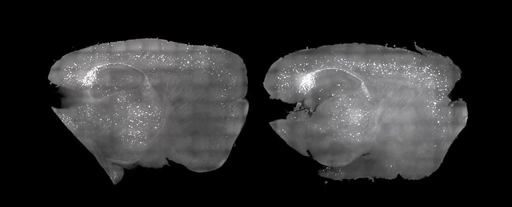 https://i0.wp.com/socientifica.com.br/wp-content/uploads/2019/03/mouse_brains_alzh_light_sound_1024.jpg?resize=1024%2C415&ssl=1