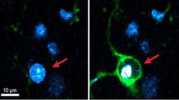cérebro elimina neurônios mortos
