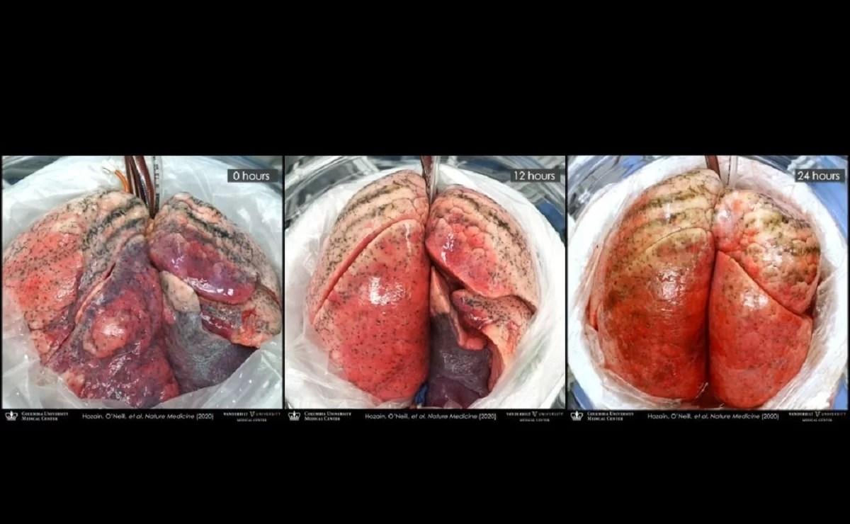 Pulmões humanos se regeneram ao serem anexados em porcos – SoCientífica